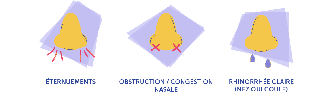 les symptômes de la rhinite allergique : éternuments, obstruction/congestion nasale et rhinorrhée